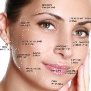 Dermal filler treatment areas.